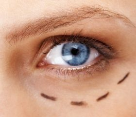 face_lift_cosmetic_eyelid_surgery_blepharoplasty_small