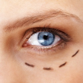 face_lift_cosmetic_eyelid_surgery_blepharoplasty_small