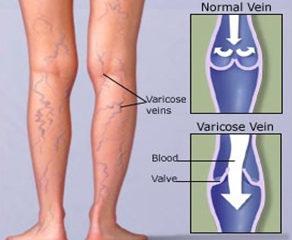 varicose_causes
